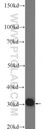 24326-1-AP - ACPT / Testicular acid phosphatase