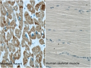 66125-1-Ig - alpha 1 cardiac muscle Actin / ACTC1