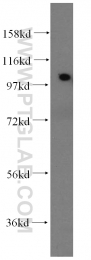 14221-1-AP - Alpha-actinin-2 / ACTN2