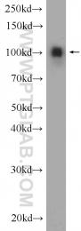 19096-1-AP - Alpha-actinin-4 / ACTN4