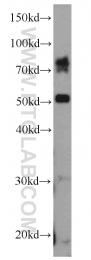 13952-1-AP - ADAM2 / FTNB