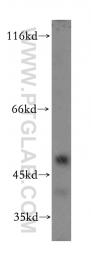 19778-1-AP - Alpha-2B adrenergic receptor