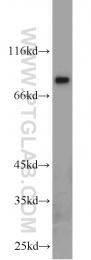11889-1-AP - AGGF1 / VG5Q