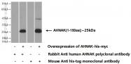 16637-1-AP - AHNAK / PM227