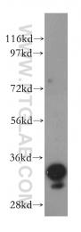 15439-1-AP - AKR1B1 / ALDR1