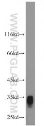 11194-1-AP - AKR1C3 / DDH3
