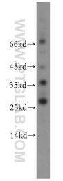 20525-1-AP - AKR1CL2 / AKRDC1