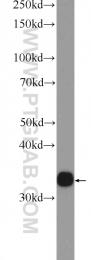 23910-1-AP - AKR1D1 / SRD5B1