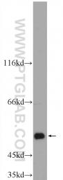 25167-1-AP - ALDH1A3 / ALDH6
