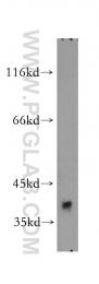 14884-1-AP - Aldolase C / ALDOC