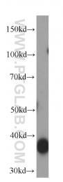 66120-1-Ig - Aldolase C / ALDOC
