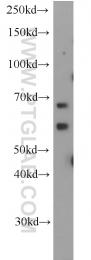 20753-1-AP - ALG6