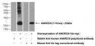 24027-1-AP - ANKRD39