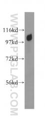11401-1-AP - AP2A1 / ADTAA