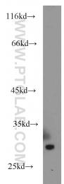 20773-1-AP - Serum amyloid P-component