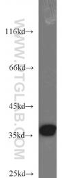 10203-1-AP - APEX1 / REF-1