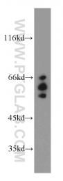 15293-1-AP - ARFGAP3