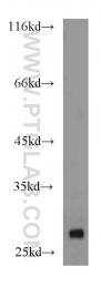10509-1-Ig - ARHGDIA / GDIA1