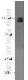 11363-1-AP - ARHGEF1