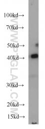 66036-1-Ig - ASS1