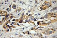 11142-1-AP - CD298 / ATP1B3