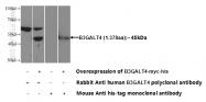 13490-1-AP - B3GALT4