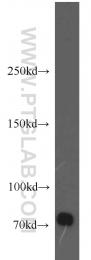 12807-1-AP - BACE1