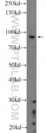 22964-1-AP - BARD1