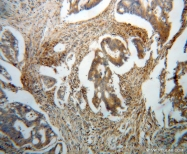14941-1-AP - Bleomycin hydrolase