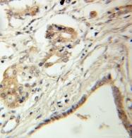 10855-1-AP - B-cell linker protein / BLNK