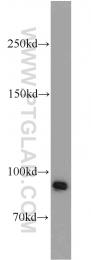 20649-1-AP - BRCA1 / RNF53
