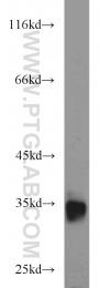 13560-1-AP - CD317 / BST2