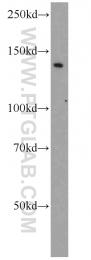 11504-2-AP - BUB1B