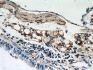 20277-1-AP - Osteocalcin