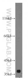 19254-1-AP - C1GALT1C1