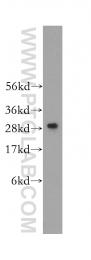11602-1-AP - C1q A subunit