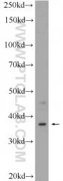 16040-1-AP - C20orf195