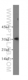 16696-1-AP - Carbonic anhydrase 13