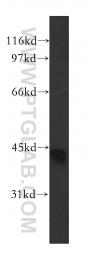 13613-1-AP - CAMK1D