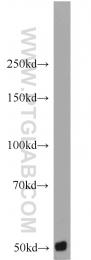 10669-1-AP - CARD9