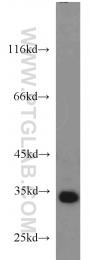 24061-1-AP - CCDC101 / SGF29