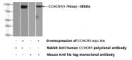 21869-1-AP - CCHCR1