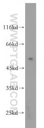 17952-1-AP - CD274 / PDL1