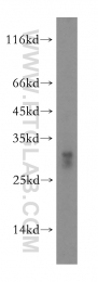 16669-1-AP - CD3 delta chain