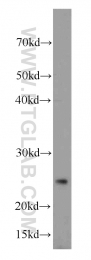 20597-1-AP - CD9
