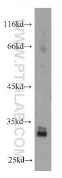 11026-1-AP - CDK4