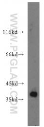 19117-1-AP - CDK6