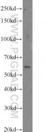 22988-1-AP - CDKAL1