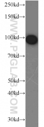10170-1-AP - Complement factor B