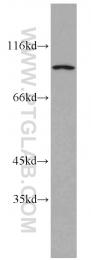12169-1-AP - CHFR / RNF196